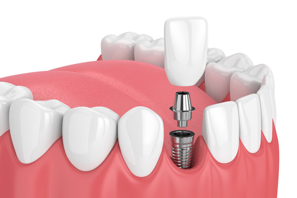 Rendering image of a dental implant at Fay Periodontal Associates.